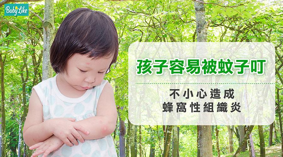 孩子容易被蚊子叮!不小心造成蜂窩性組織炎